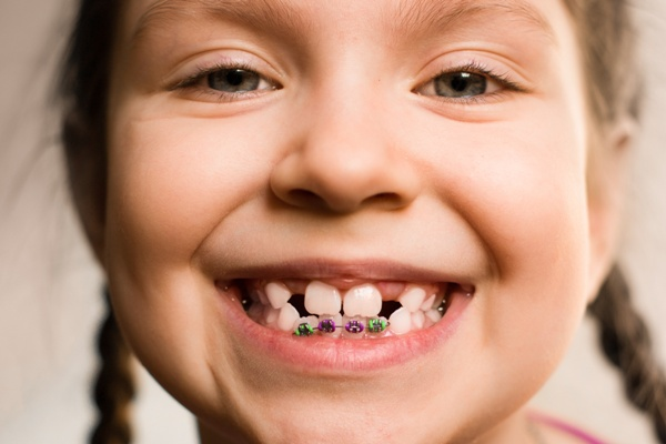 Orthodontic treatment for adults and children | Evolution Dental | Calgary