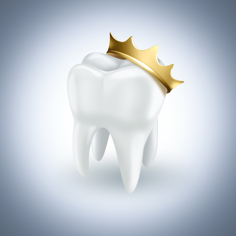 CEREC same-day crowns can be completed in one dental visit
